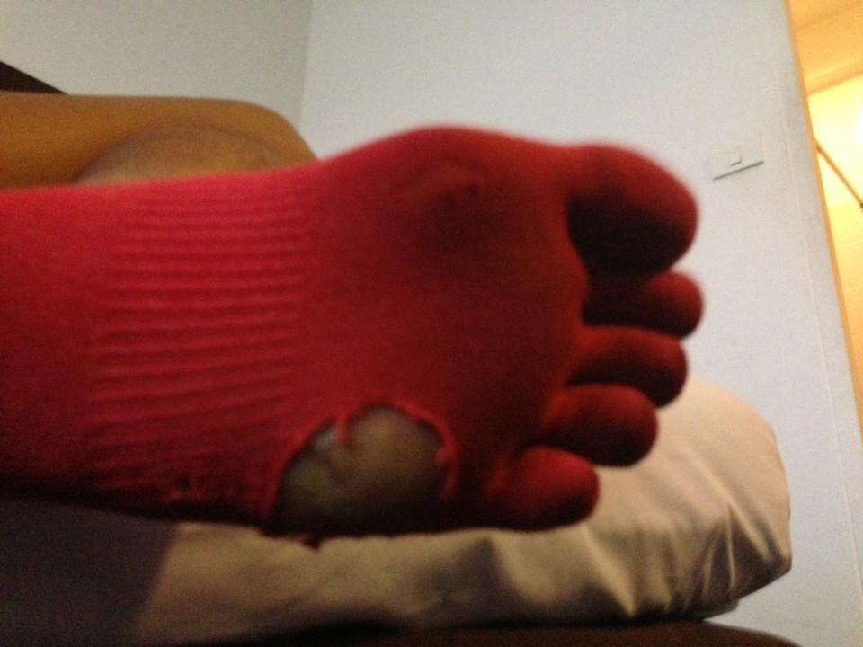 靴下に出来る穴の位置で。。。