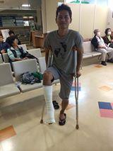 アキレス腱完全断裂から6ヶ月(実質5ヶ月)